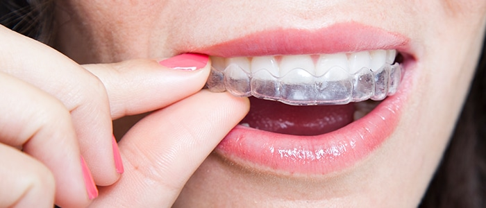invisalign featured service
