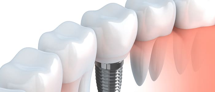 Implant Dentistry featured service