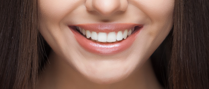 durathin veneers featured service