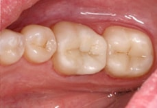 Cerec After Image