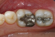 Cerec Before Image