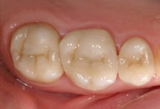 Cerec Smile Enhancement