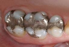 Cerec Dental Materials