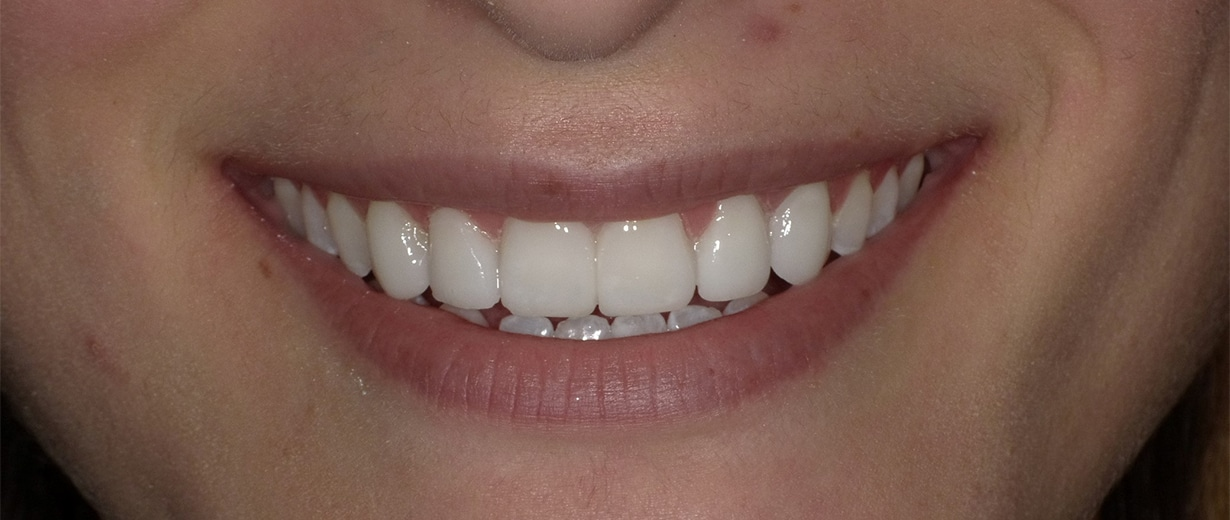 After DuraThin Veneers
