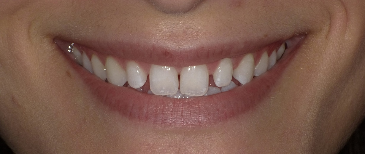 Before DuraThin Veneers
