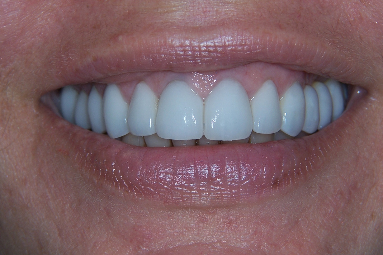 after dental crowns 1