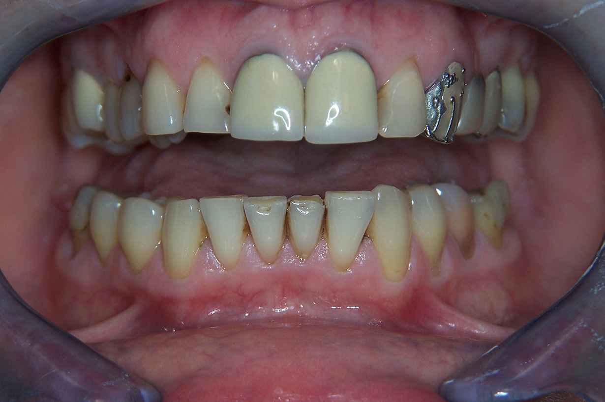 before dental crowns 1