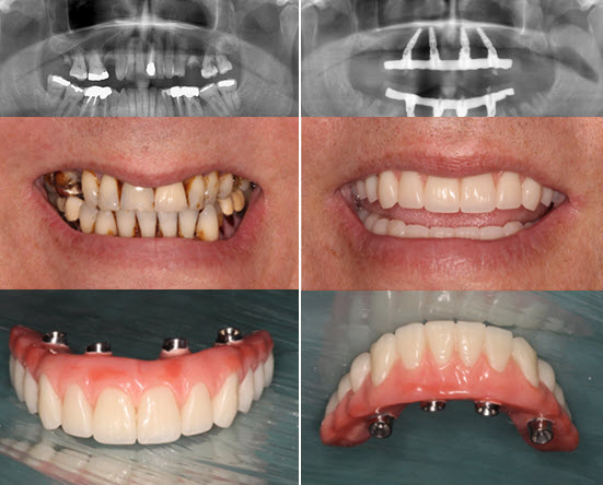 All-on-four Dental Implants Before/After