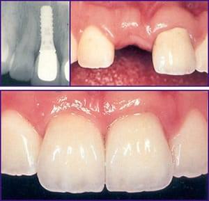 dental implants new orleans | missing teeth