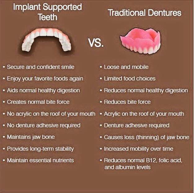 Implant Supported Teeth vs. Traditional Dentures