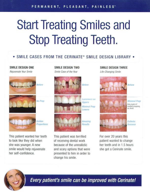 start treating smiles