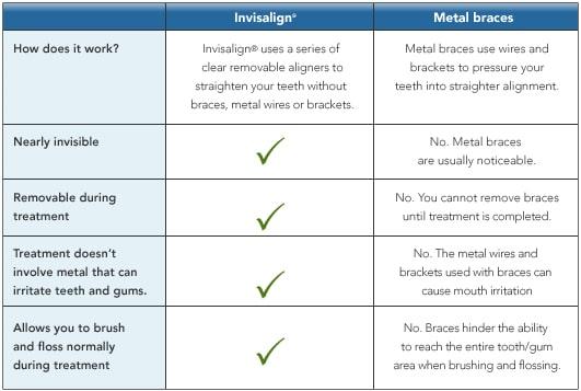 Invisalign® table