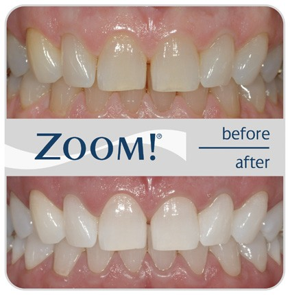 After Zoom Teeth Whitening